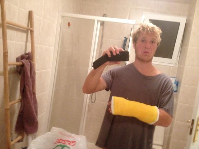 Balz Müller has broken his hand
