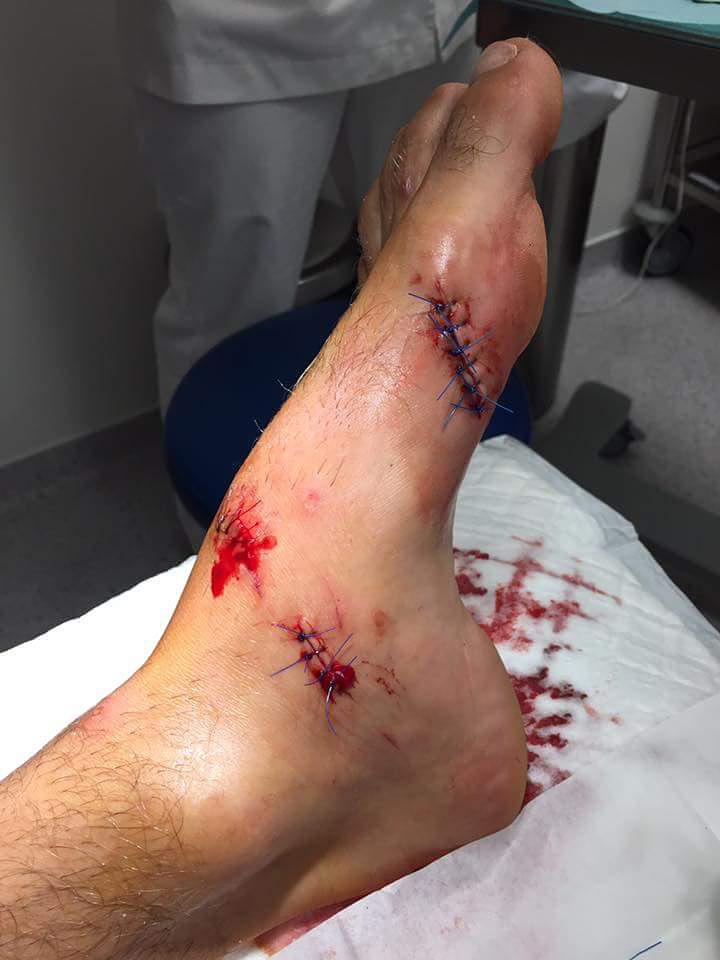 Jean-Mat de Ridder's foot injury
