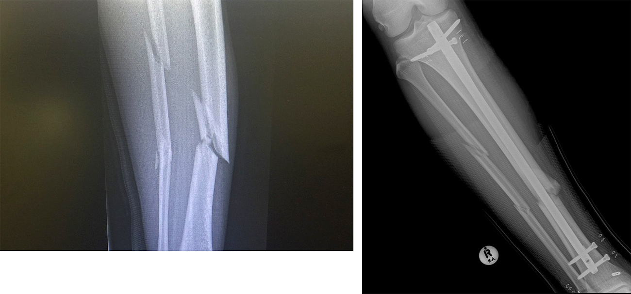 Alessio Stillrich's broken bones before and after the surgery in Cape Town in January 2018